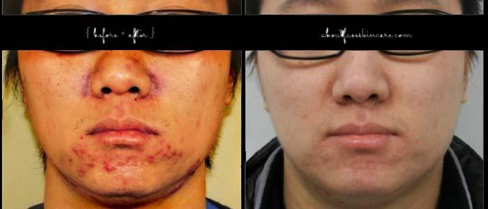 Testimoni #02 T-Kio NUKE obat jerawat paling ampuh